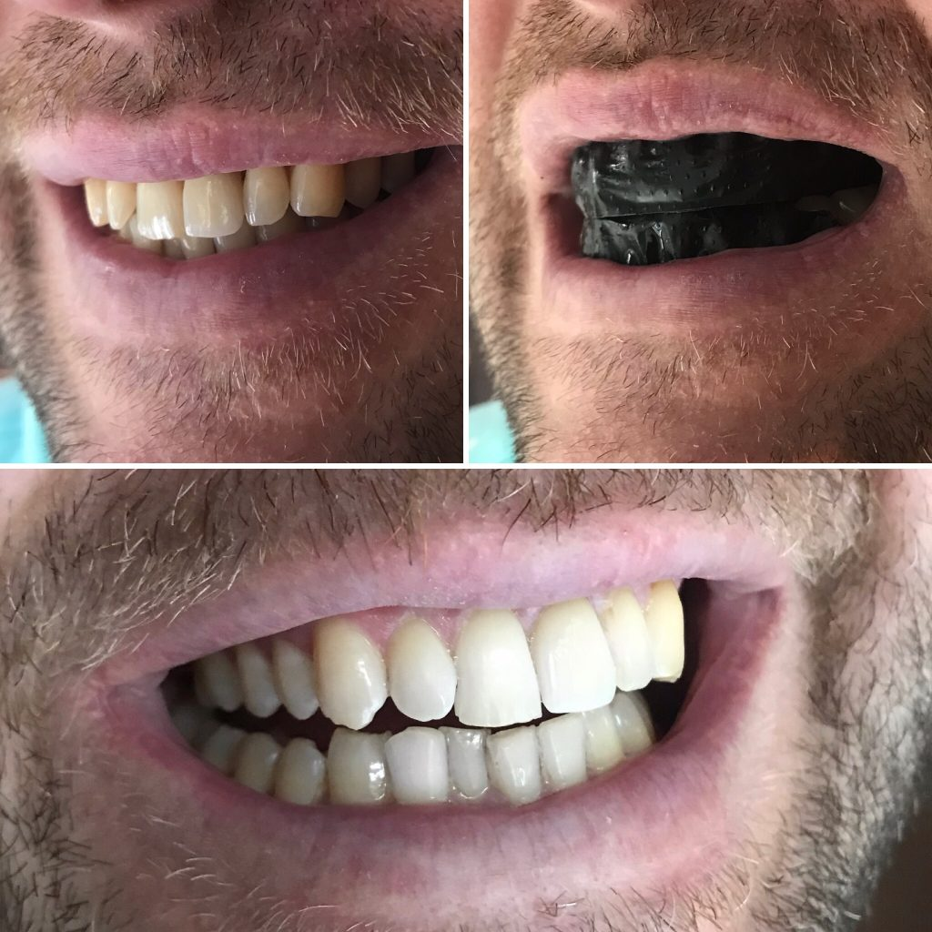 Teeth Whitening Strips Before, During and After